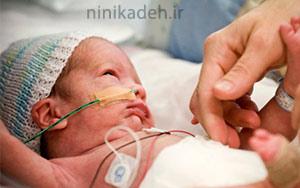 نوزاد نارس چیست