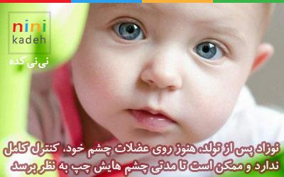 چپ بودن چشم نوزاد