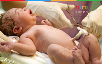 بند ناف نوزاد